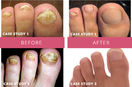 nail fungus treatment guide case study