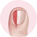 surgical treatment for toenail fungus