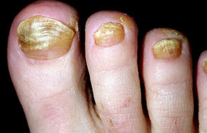24 Pictures of Nail Fungus in Early & Fully Development Stages | GNFO