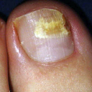 Finger And Toenail Fungus Gallery Male Early Symptoms