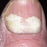 Finger and Toenail Fungus Gallery
