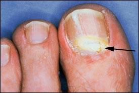 infection of the nail bed