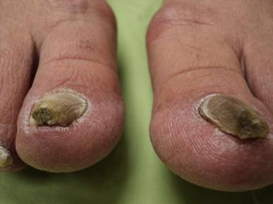 Toenail Fungus Medications - Tyler, TX | Podiatrist