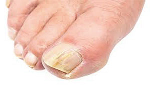 big-toenail-yellow