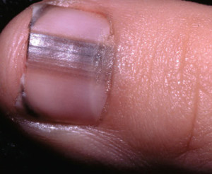 Dark line on finger and toenails