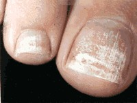 white spots on Houston toenails
