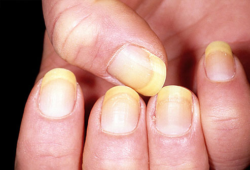 yellow nail is toenail fungus