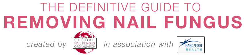 Removing Nail Fungus Guide Title