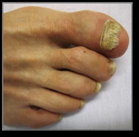 toenail fungus toe