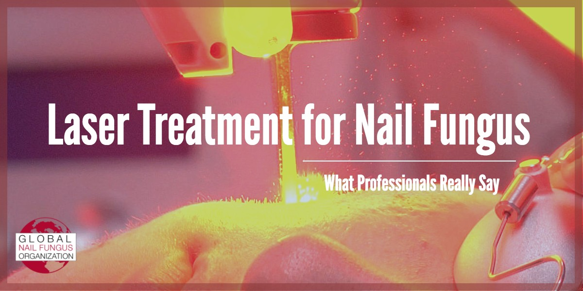 Laser Treatment for Nail Fungus