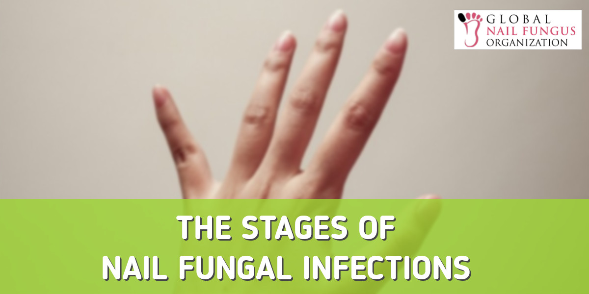 The Stages Of A Nail Fungal Infection