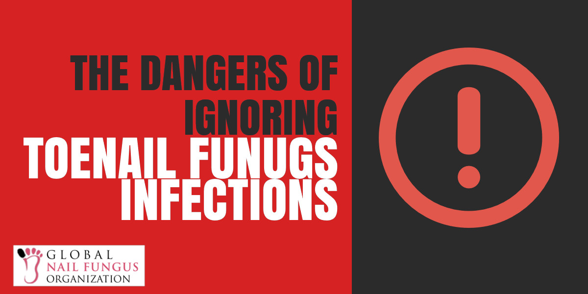 The Dangers of Ignoring Toenail Fungus Infections