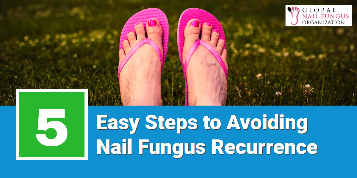 5 Easy Steps to Avoid Nail Fungus Recurrence | GNFO