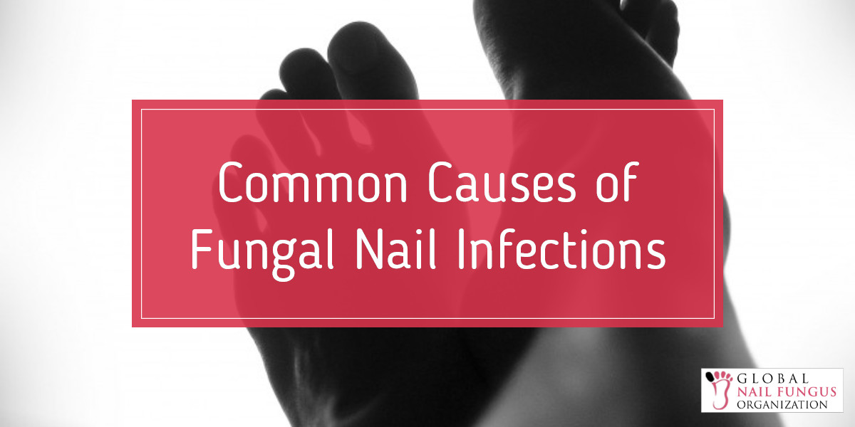 common-causes-of-fungal-nail-infections
