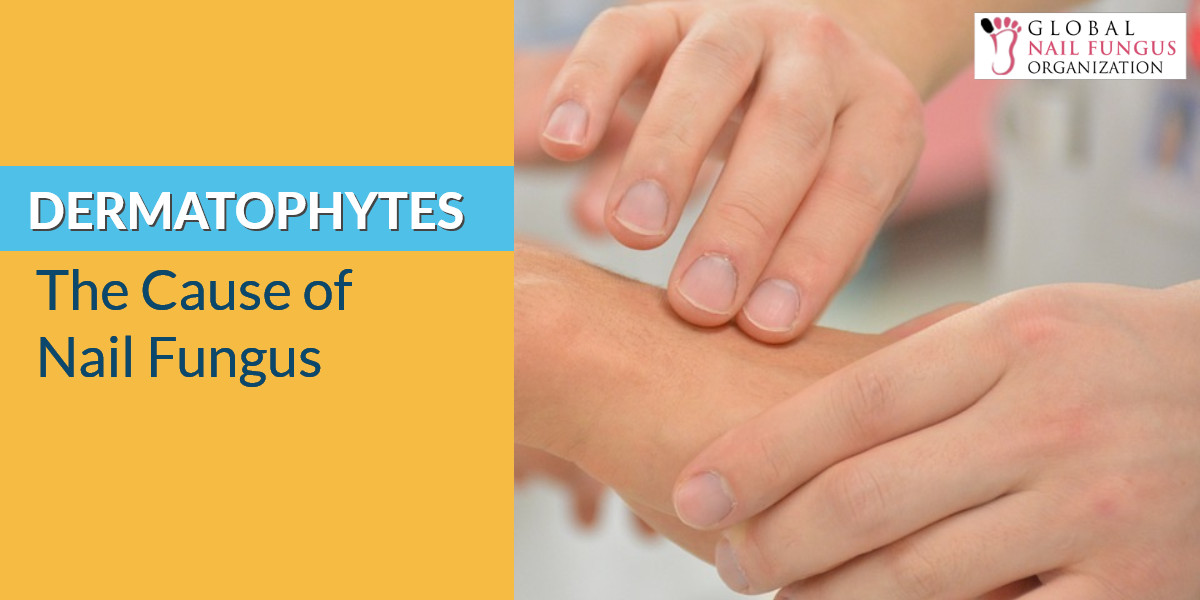 Dermatophytes The Cause Of Nail Fungus