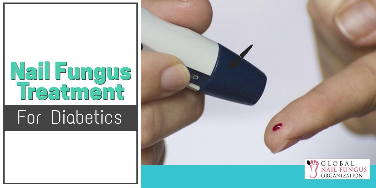 Nail Fungus Treatment For Diabetes | GNFO