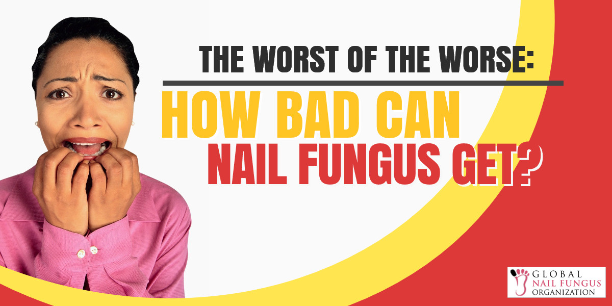 the-worst-of-the-worst_-how-bad-can-nail-fungus-get_1