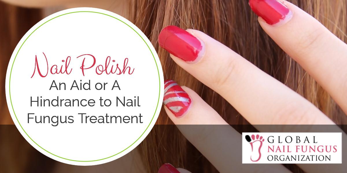 Nail Polish An Aid or a Hindrance to Nail Fungus Treatment