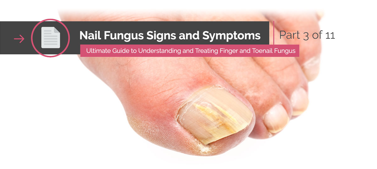 Nail Fungus Signs And Symptoms