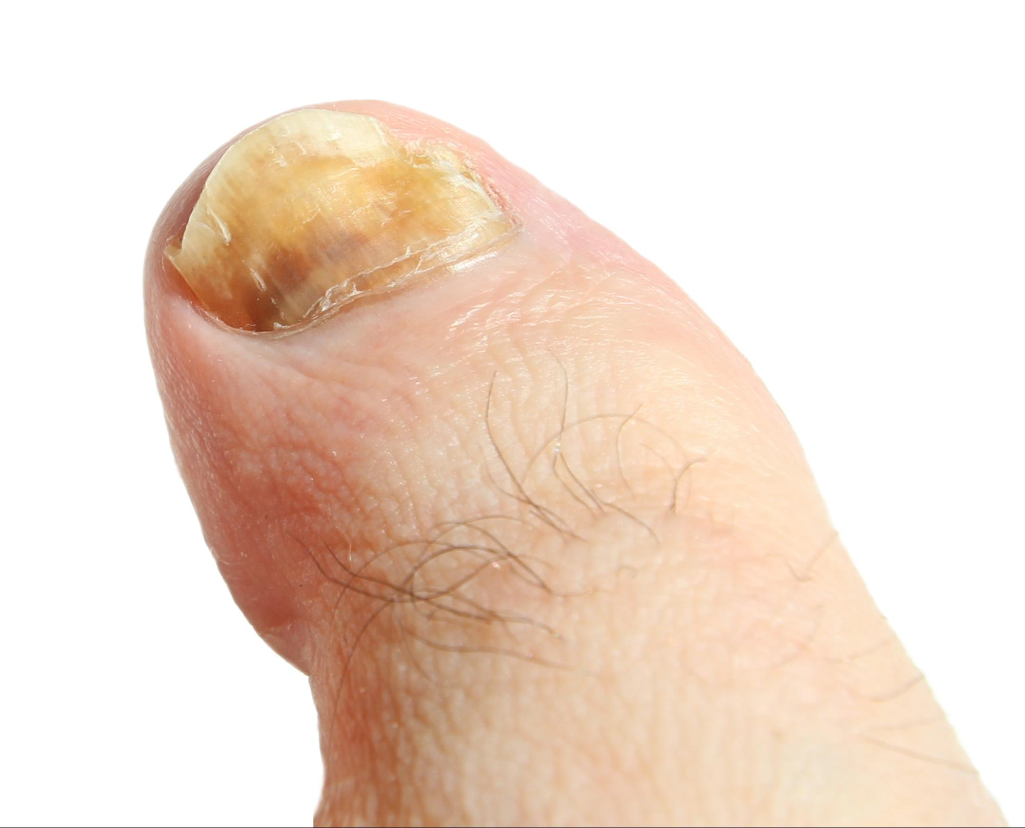 The Ultimate Guide to Understanding and Treating Finger and Toenail