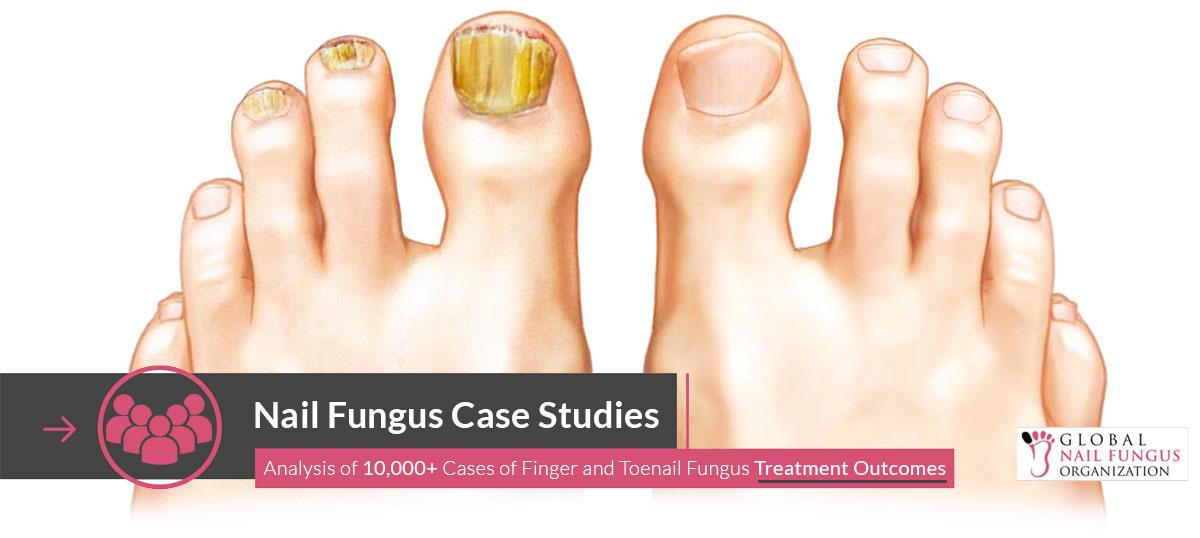 Nail Fungus Case Studies | GNFO