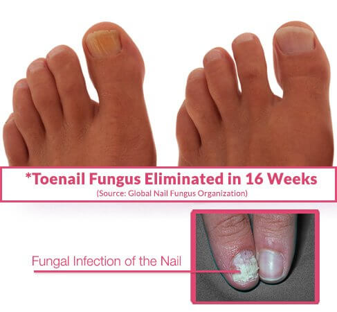 Best Toenail Fungus Solutions, Education & Research | GNFO