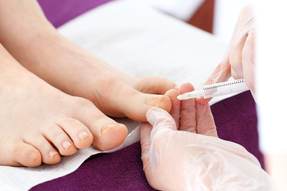 Toenail Removal Surgery - Everything You Need to Know | GNFO