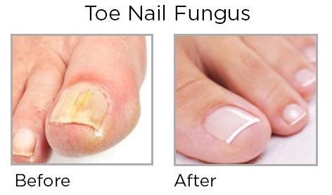 Dr Ishiguro Toenail Fungus