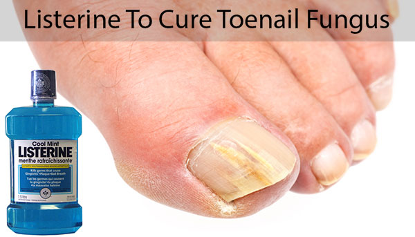 Listerine For Toenail Fungus
