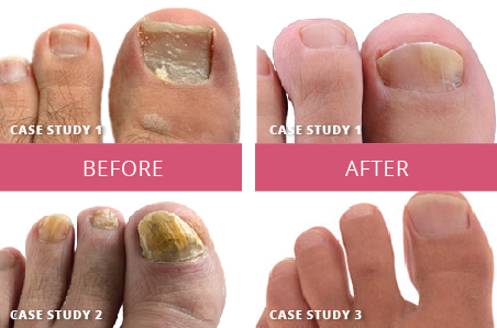 31 Nail Fungus Treatments, Reviews & Comparisons (OTC) | GNFO